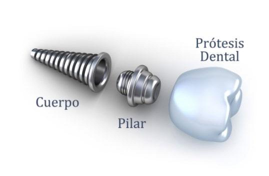 implantes detalle